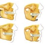 jaw surgery abroad