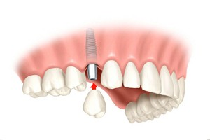 dental implant vilnius
