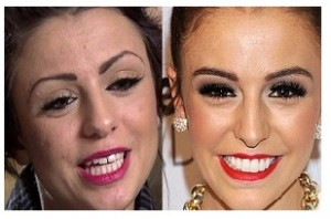 Cher-Lloyd,before-after