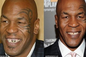 Mike-Tyson before after
