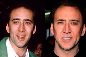Nicolas.Cage.before-after