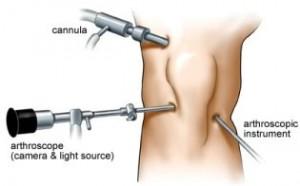 knee arthroscopy abroad