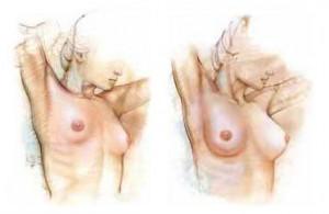 Breast Enlargement Abroad