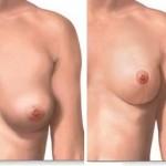 Breast Lift effect