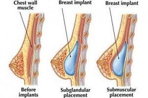 Breast enlargement surgery