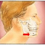 Chin-Implant Poland