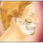 Chin-Implant Surgery