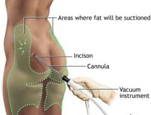 Liposuction in Poland