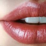 lip augmentation abroad