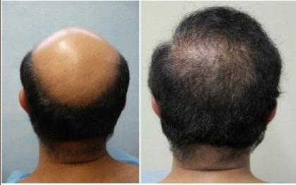 Hair transplant effect