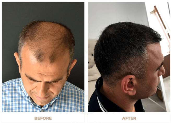 hair transplant in Istanbul before and after